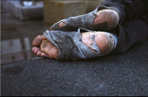 homelessness-feet